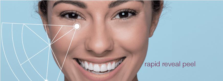 rapid reveal peel